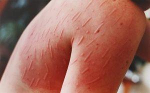 Tratamentele cosmetice potrivite daca ai dermografism