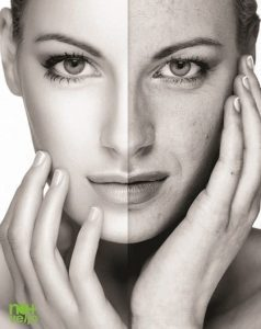 Rejuvenarea faciala Nomasvello trateaza ridurile, petele, acneea