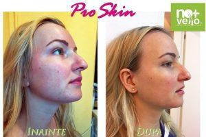 Tratament facial ProSkin inainte si dupa