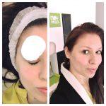 Cristina Balan-tratamente faciale-nomasvello