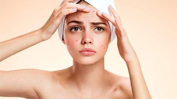 Tratamente pentru cosuri eficiente in lupta cu acneea