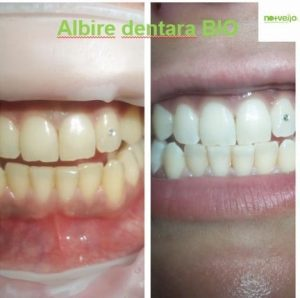 Albire dentara BIO No+Vello