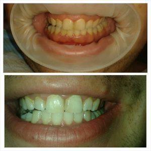 Inainte si dupa albirea dentara BIO