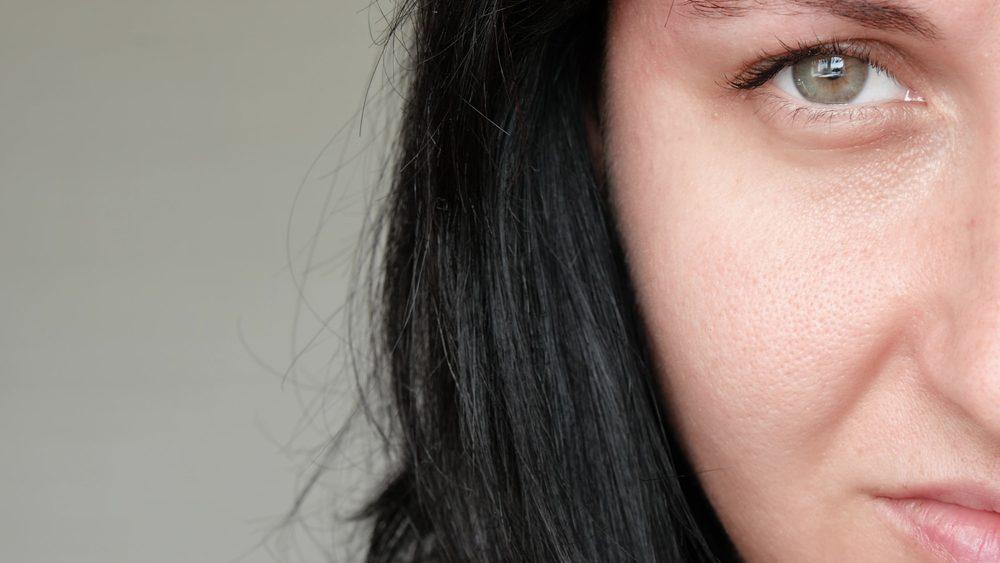 Cauzele dilatarii porilor