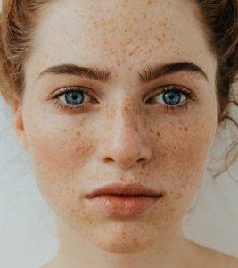 Tratament pete pigmentare